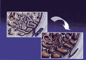 восстановление потенции после хламидиоза
